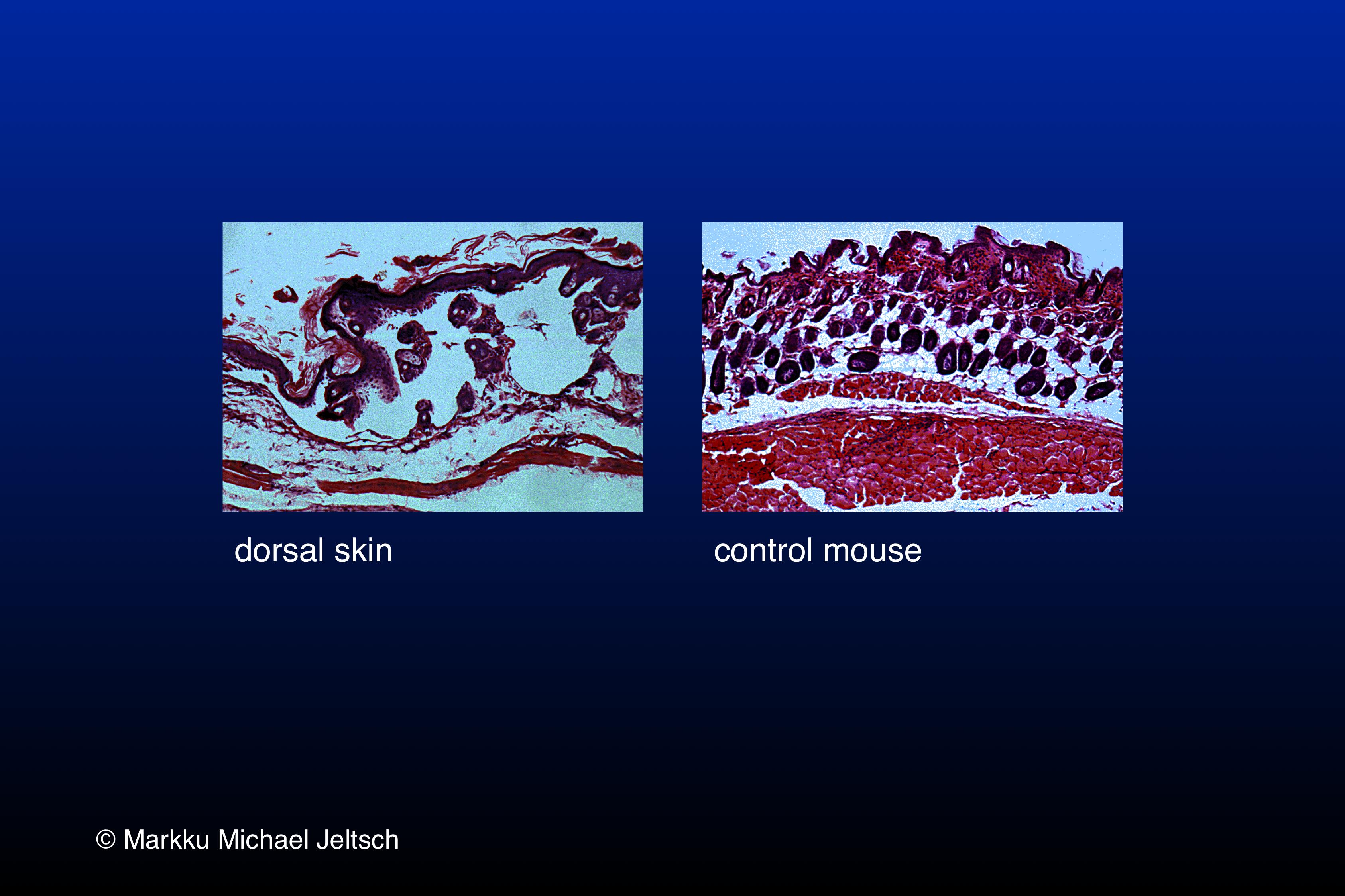 skin H&E staining of K14-VEGF-C transgenic mouse