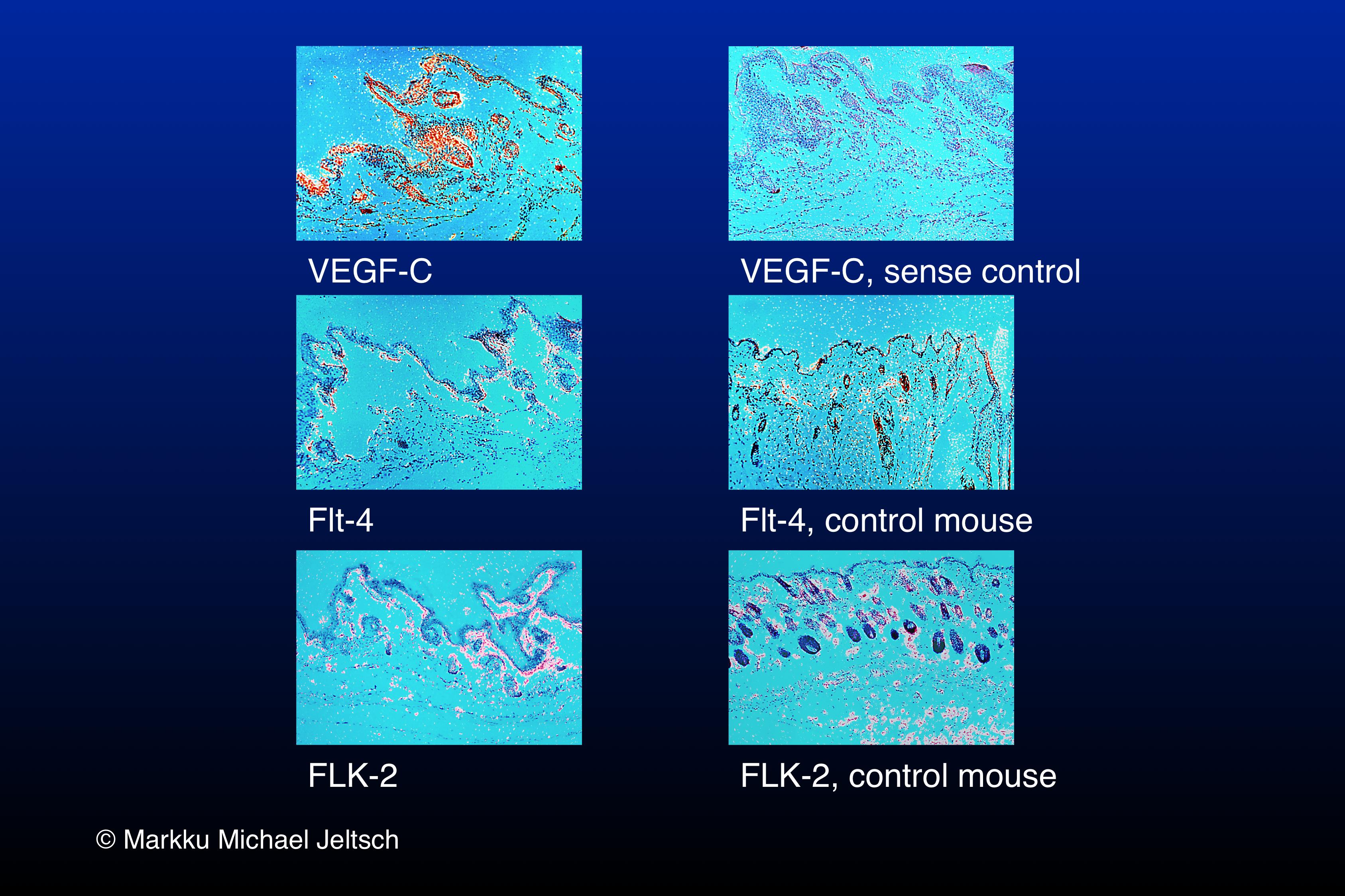 in-situ hybridisation of K14-VEGF-C transgenic mouse