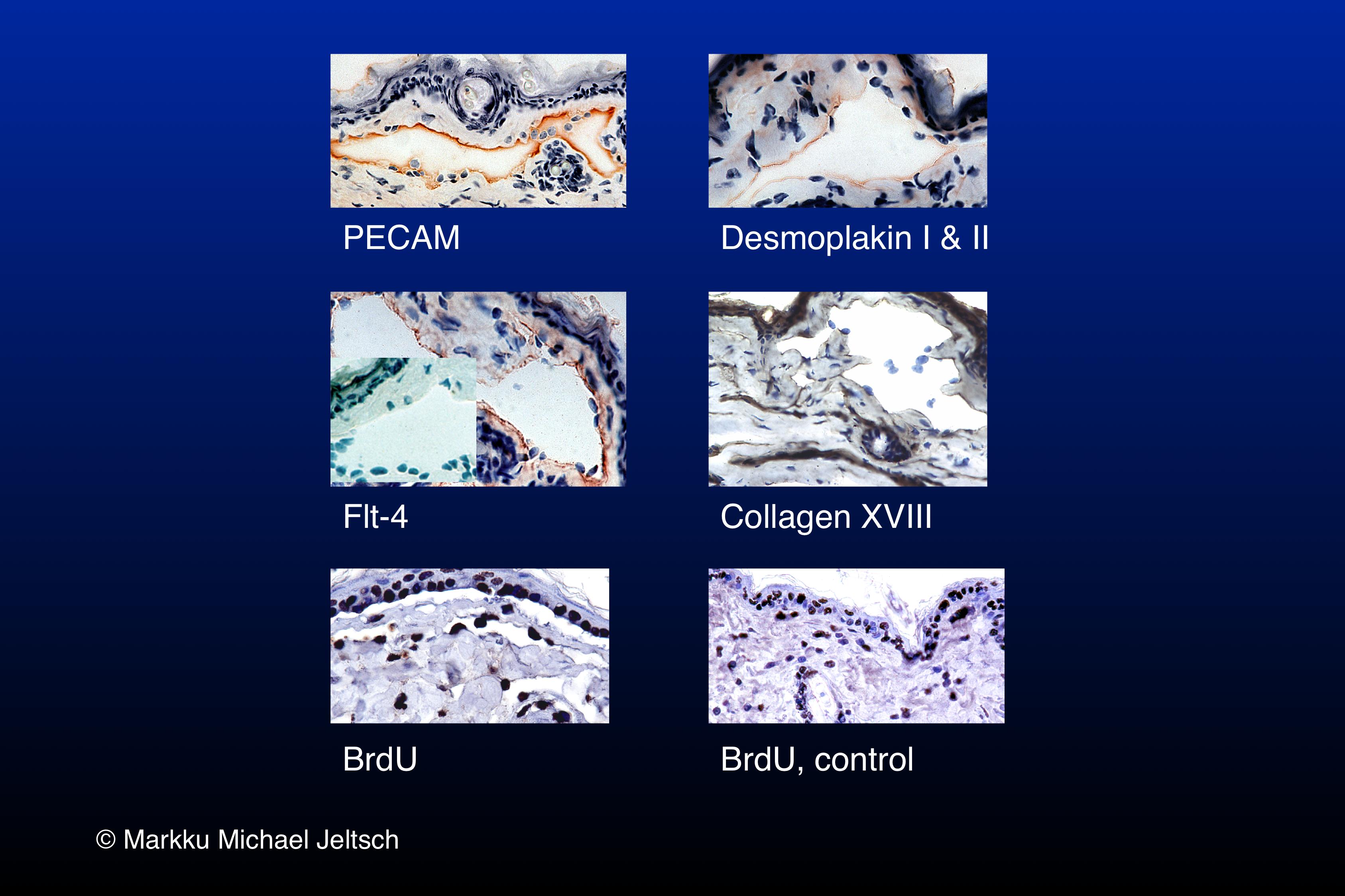 IHC of K14-VEGF-C transgenic mouse