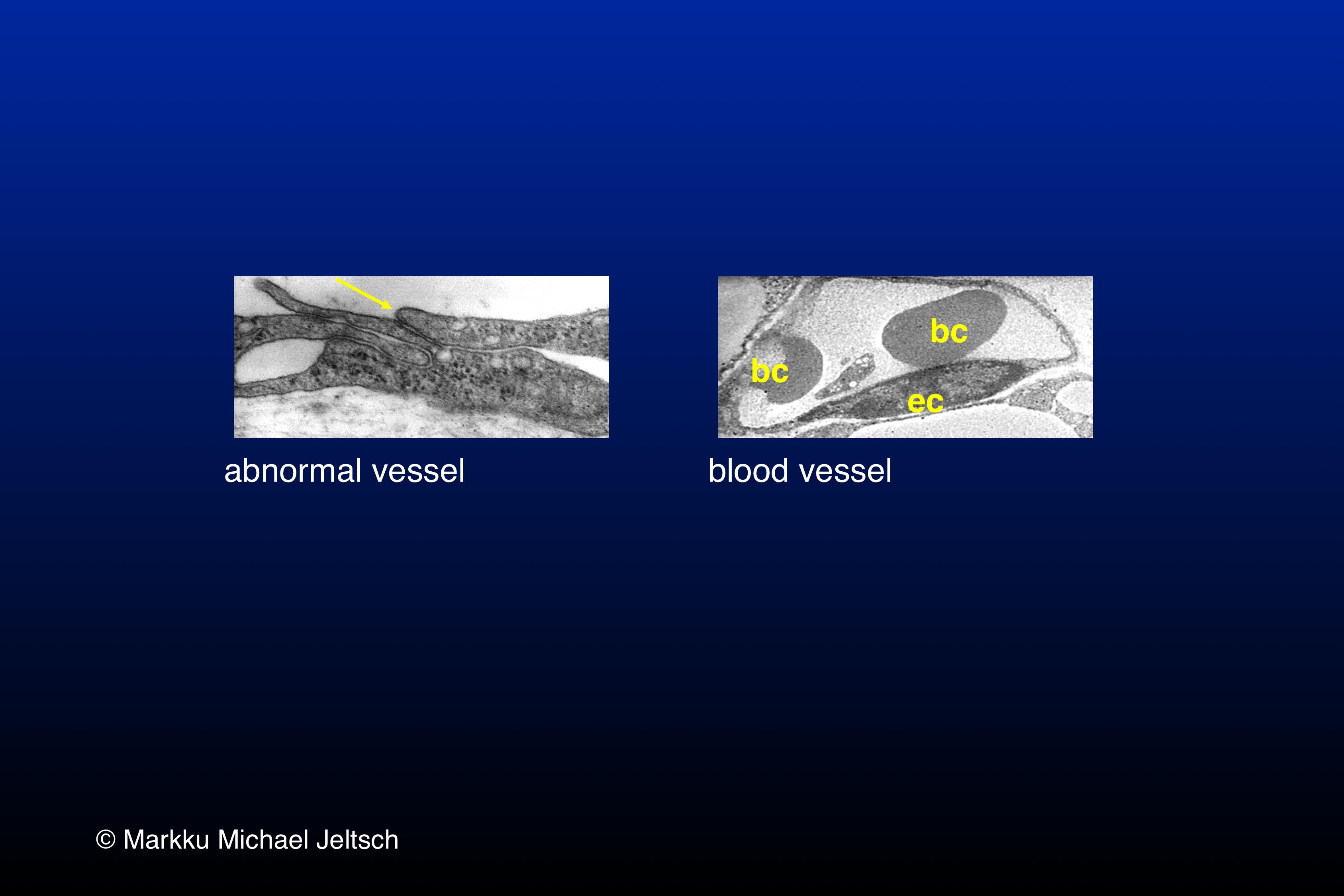 EM of K14-VEGF-C transgenic mouse