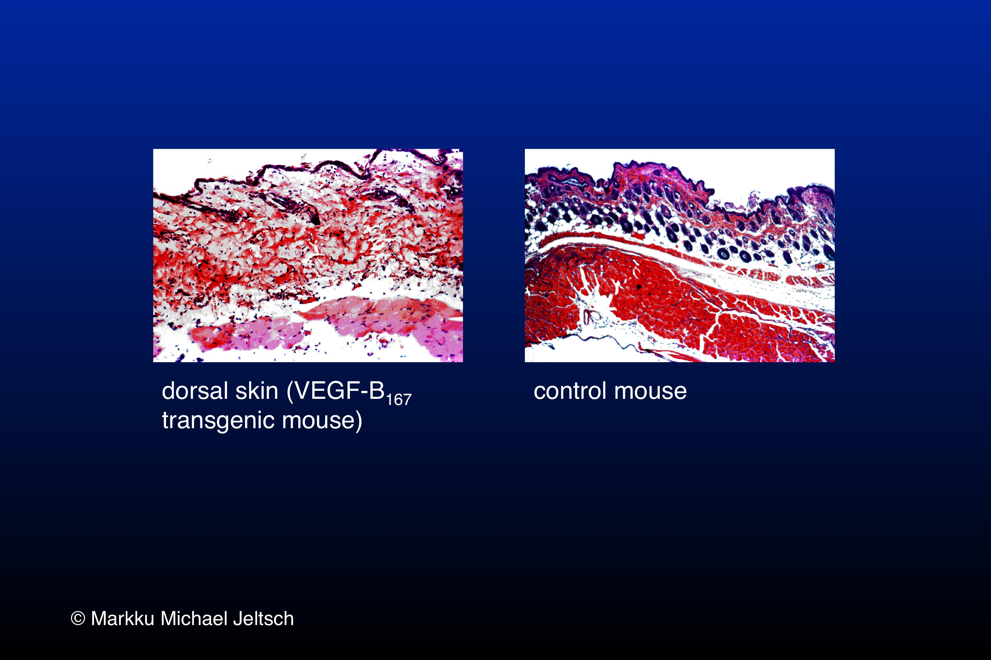skin H&E staining of K14-VEGF-B167 transgenic mouse