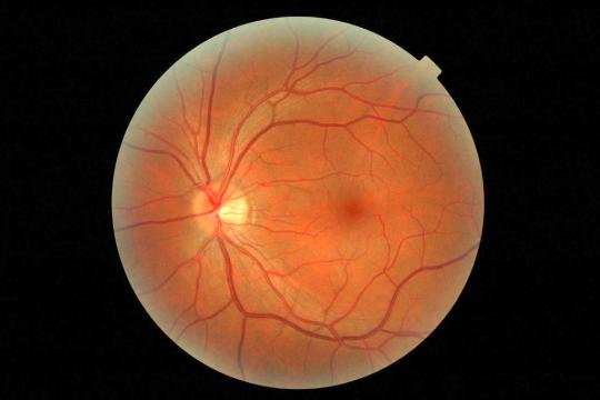 """""""My left eye retina"""" by Richard Masoner / Cyclelicious is licensed with CC BY-SA 2.0. To view a copy of this license, visit https://creativecommons.org/licenses/by-sa/2.0/"""