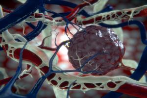 Tumor (lymph)angiogenesis